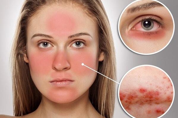 Lupus ban đỏ, căn bệnh nguy hiểm ít được biết đến