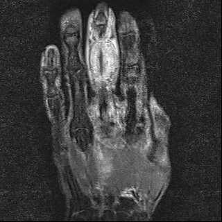 viêm bao hoạt dịch gân gấp ngón tay do lao