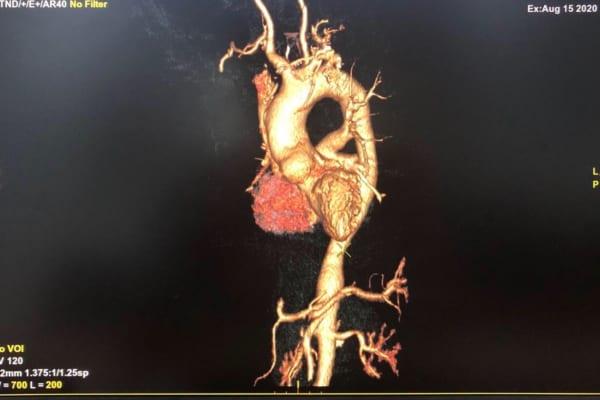 Trường hợp hiếm gặp: Đau cánh tay phát hiện tổn thương mạch máu lớn – Viêm động mạch Takayasu