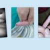 Điều trị mất da búp ngón tay bằng phương pháp băng kín, liền sẹo tự nhiên