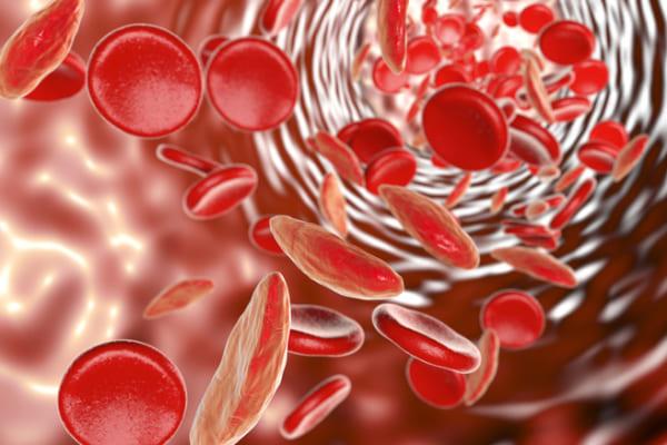 Ngày Thalassemia thế giới (8/5): Cách phòng căn bệnh di truyền có tỷ lệ cao nhất trên thế giới