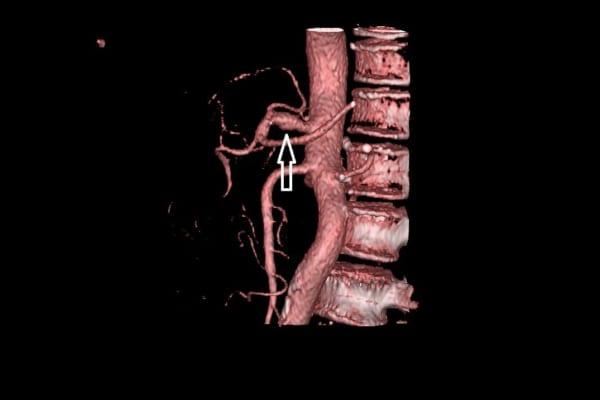Phình động mạch Thân tạng: Nhân một ca bệnh lý hiếm gặp nhưng nguy hiểm và có thể diễn tiến khó lường